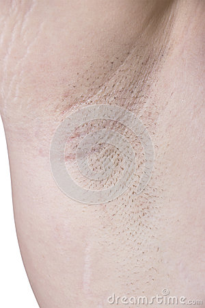 Female Armpit With Irritation