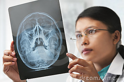 Female doctor checking xray image