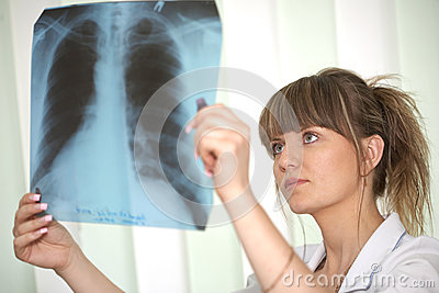 Female doctor examining an x-ray