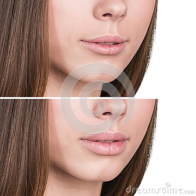 Free Female Lips Before And After Augmentation Royalty Free Stock Image - 65801006
