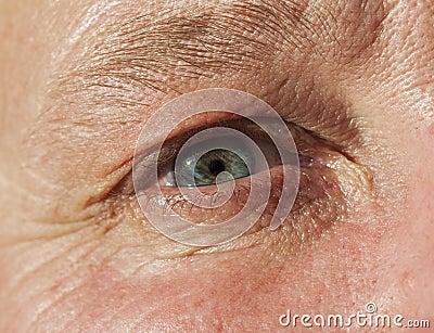 Females eye