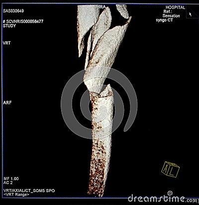 Femur fracture, Modern CT-scan reconstruction.