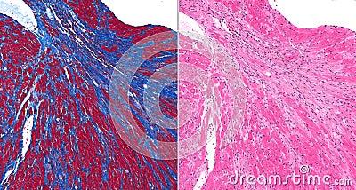 Fibrosis (scar) in heart