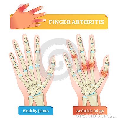 Free Finger Arthritis Vector Illustration. Healthy And Disease Affected Joints. Royalty Free Stock Image - 125494246
