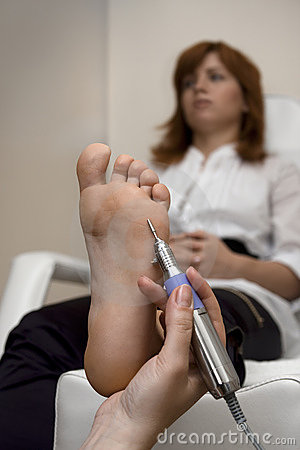 Foot Peeling Stock Photo - Image: 14254040
