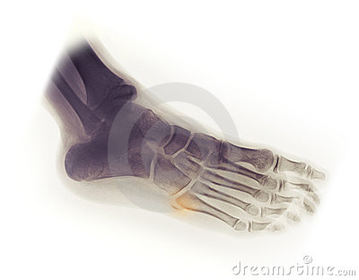 Foot X-ray, avulsion fracture of 5th metatarsal