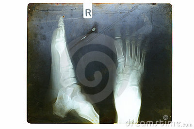 Foot on x-ray film