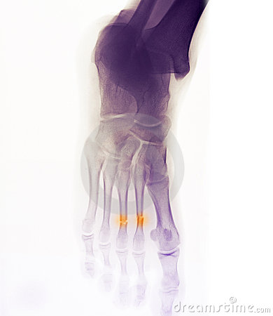Foot x-ray showing fracture