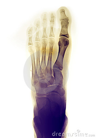 Free Foot X-ray Showing Fractures Stock Image - 15182891