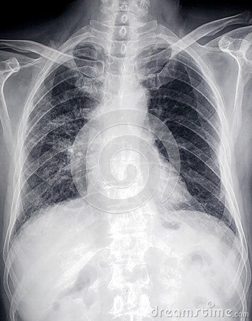 Främre röntgenstrålebild av hjärta och bröstkorgen