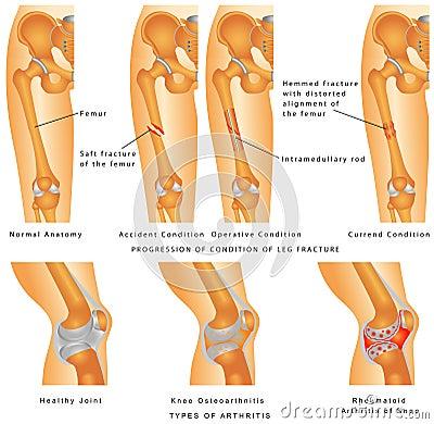 Fractures of Femur