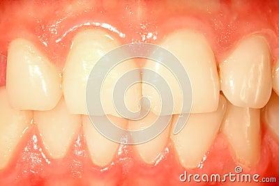 Frontal teeth