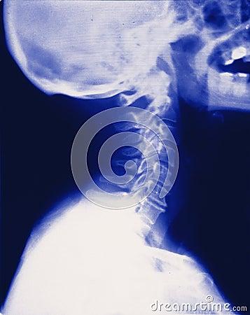 Full neck skull xray (x-ray) Stock Photo
