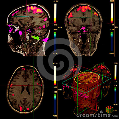 Free Functional Brain Magnetic Resonance Stock Photography - 24331502
