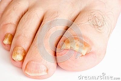 Funghi su pelle di gambe e mani