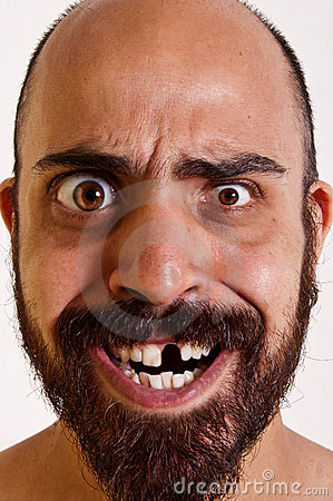 Free Funny Man Without A Tooth Stock Photography - 15657512