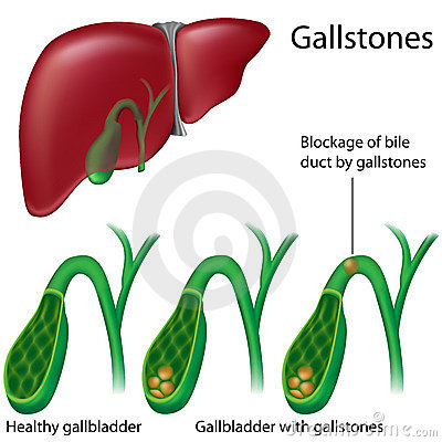 Free Gallstones Royalty Free Stock Images - 19039989