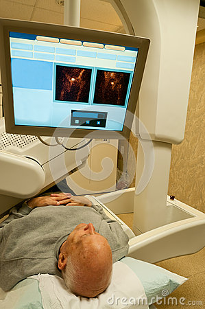 Gamma Camera Patient Image