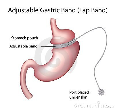Free Gastric Band Weight Loss Surgery Royalty Free Stock Image - 23018756