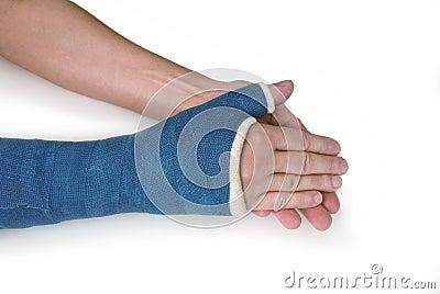 Gebroken pols, wapen met een blauwe gegoten glasvezel