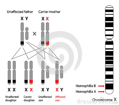 Genetics of hemophilia