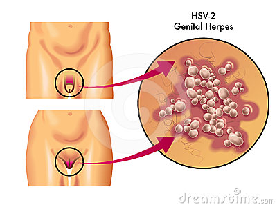 Images Of Genital Herpes