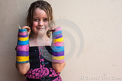 Girl Broken Arms Plaster
