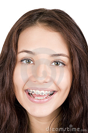 Free Girl With Braces Stock Photography - 17806722