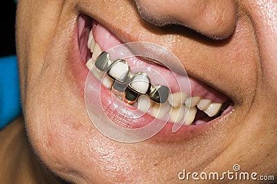 Gold teeth dentisty native corn island nicaragua