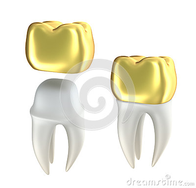 Golden Dental crowns and tooth