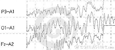 Graph brain wave EEG