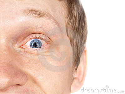 The guy eye disease