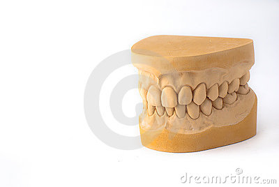 Gypsum model plaster of tooth