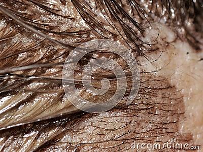 Hair dye detail