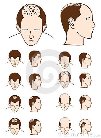 Free Hair Loss Stock Photos - 17462553