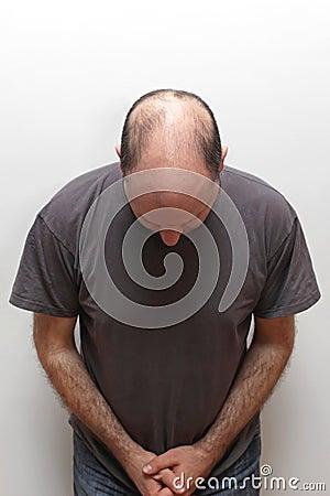 Free Hair Loss Royalty Free Stock Image - 76791626
