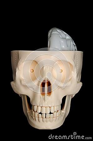 Half-Brained Skull