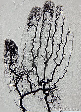 Hand angiography, arteriography