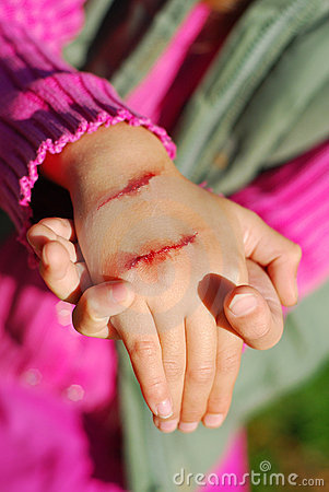 Hand of child with bloody wound
