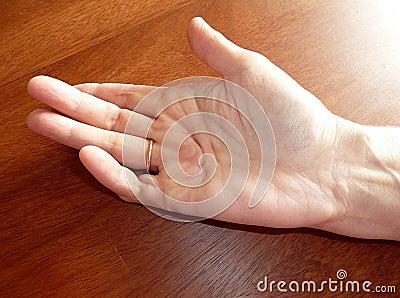 Hand disease(Dupuytren)
