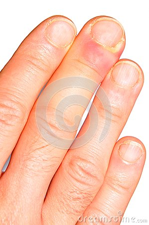 Free Hand Infection Royalty Free Stock Photo - 58388125