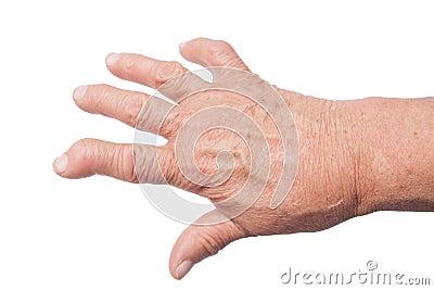 Hand With Rheumatoid Arthritis