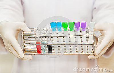 Hand of a scientific  holding a tube test