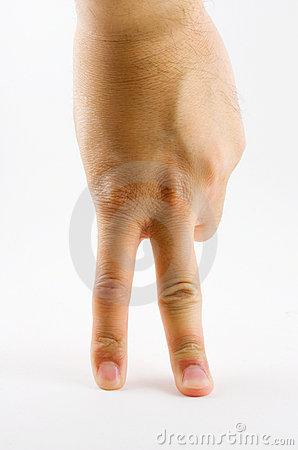 Hand and two fingers