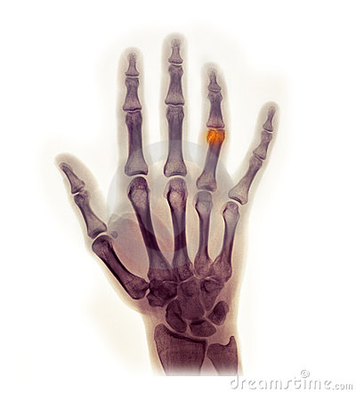 Hand x-ray showing a fracture