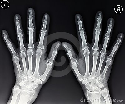 Hands X-ray