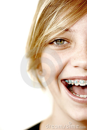 Free Happy Teen With Braces Royalty Free Stock Photo - 2325855
