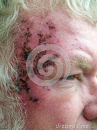 Hautkrebs