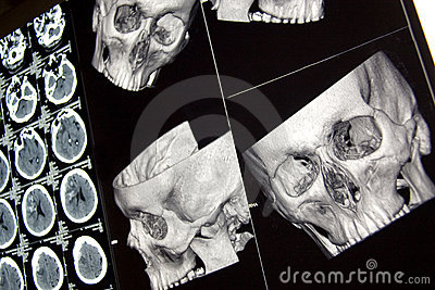 Traumatic brain injury, head bones and brain, CT