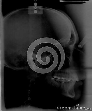 Head bones radiography